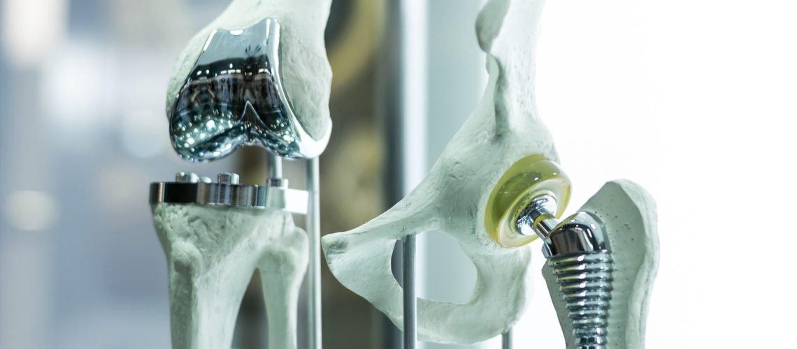 Борьба немецких врачей за качество эндопротезов